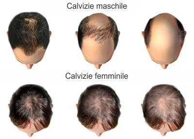 Chirurgia estetica capelli uomo donna