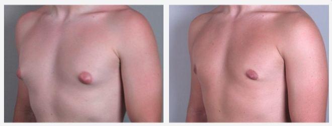 Foto prima e dopo ginecomastia bilaterale vera moderata. Frontale