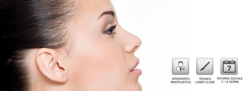 Rinoplastica - Chirurgia Plastica del Naso