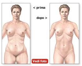 Vedi foto liposuzione