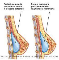 Mastoplastica additiva dietro la ghiandola mammaria