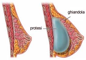Impianto di prote mammaria in sede retroghiandolare