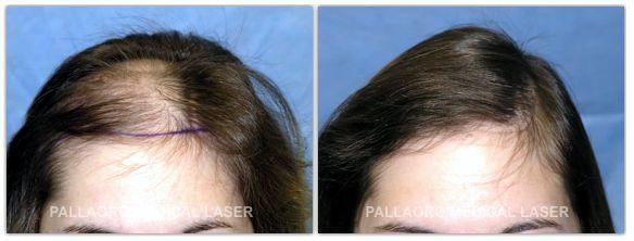 I kefiric mascherano con cacao per risposte di capelli da una fotografia prima di e poi