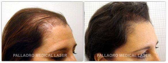 Infoltimento capelli nelle donne
