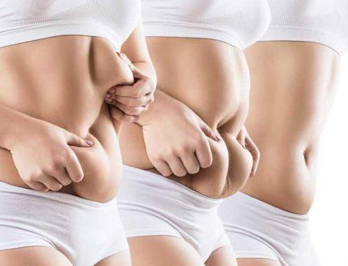 Addome adiposo: Ecco le soluzioni della chirurgia estetica