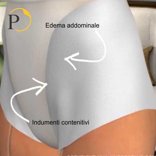 addominoplastica edema