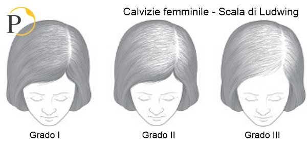 calvizie femminile