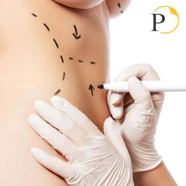 Quanto costa la chirurgia estetica addome costi