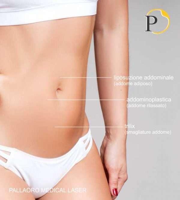 chirurgia estetica addome