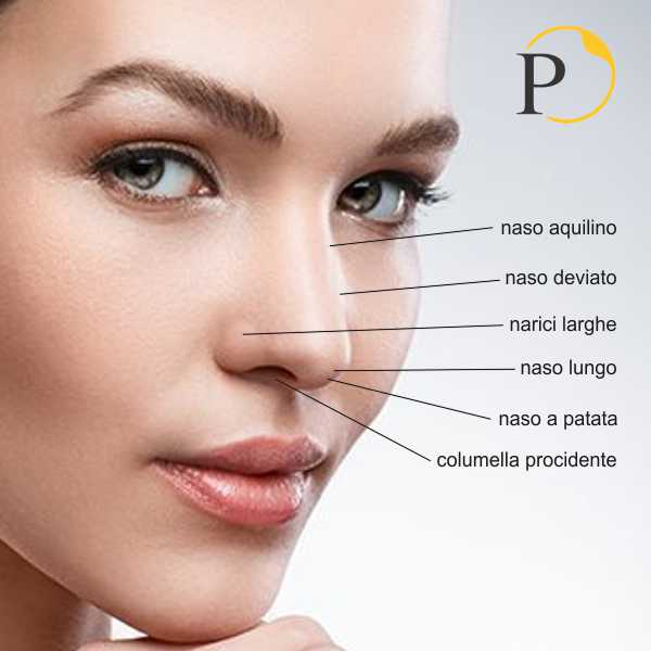 Inestetismi chirurgia estetica naso