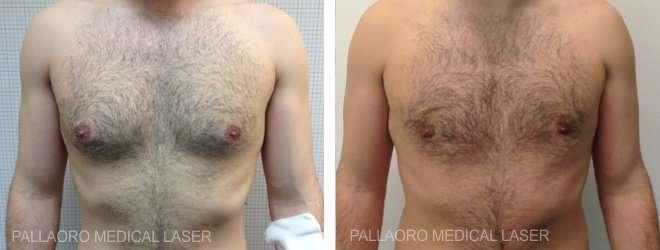seno maschile prima dopo