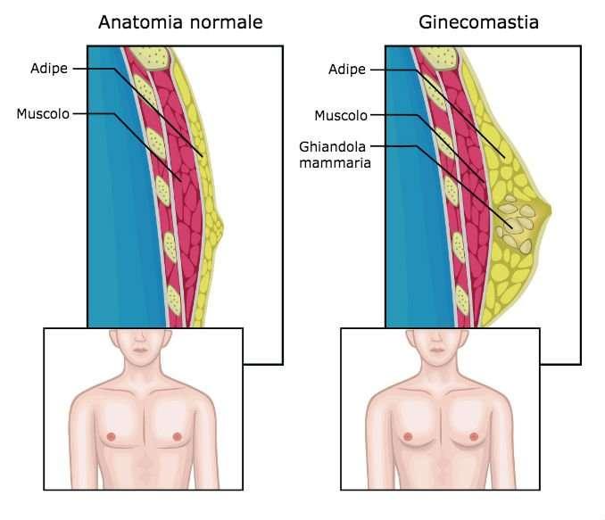 ginecomastia costo varia in funzione dell'anatomia