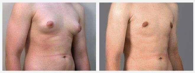 liposuzione pettorali e ginecomastia