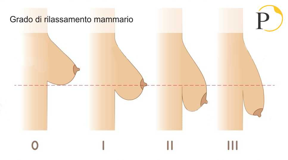 Paziente ideale della mastopessi: grado di rilassamento mammario