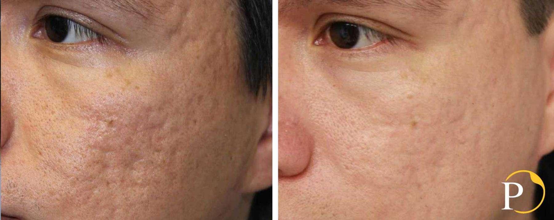 laser frazionato per cicatrici d'acne