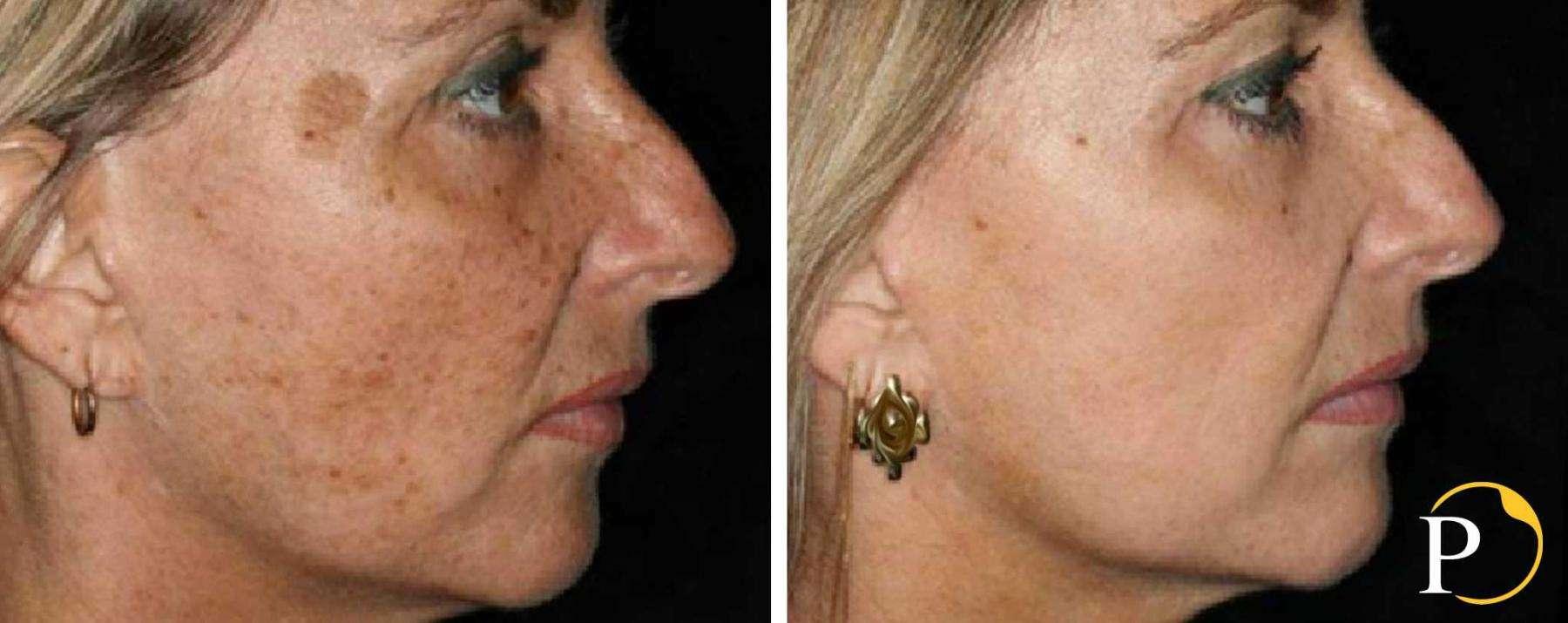 laser frazionato per macchie al viso