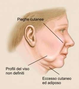 lifting viso fattori