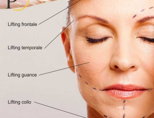 Sono visibili le cicatrici del lifting del viso?