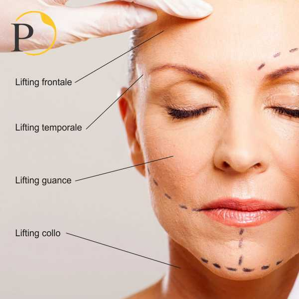 lifting viso: tutti i minilifting possibili