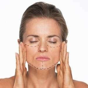 chirurgia estetica del viso: Lifting