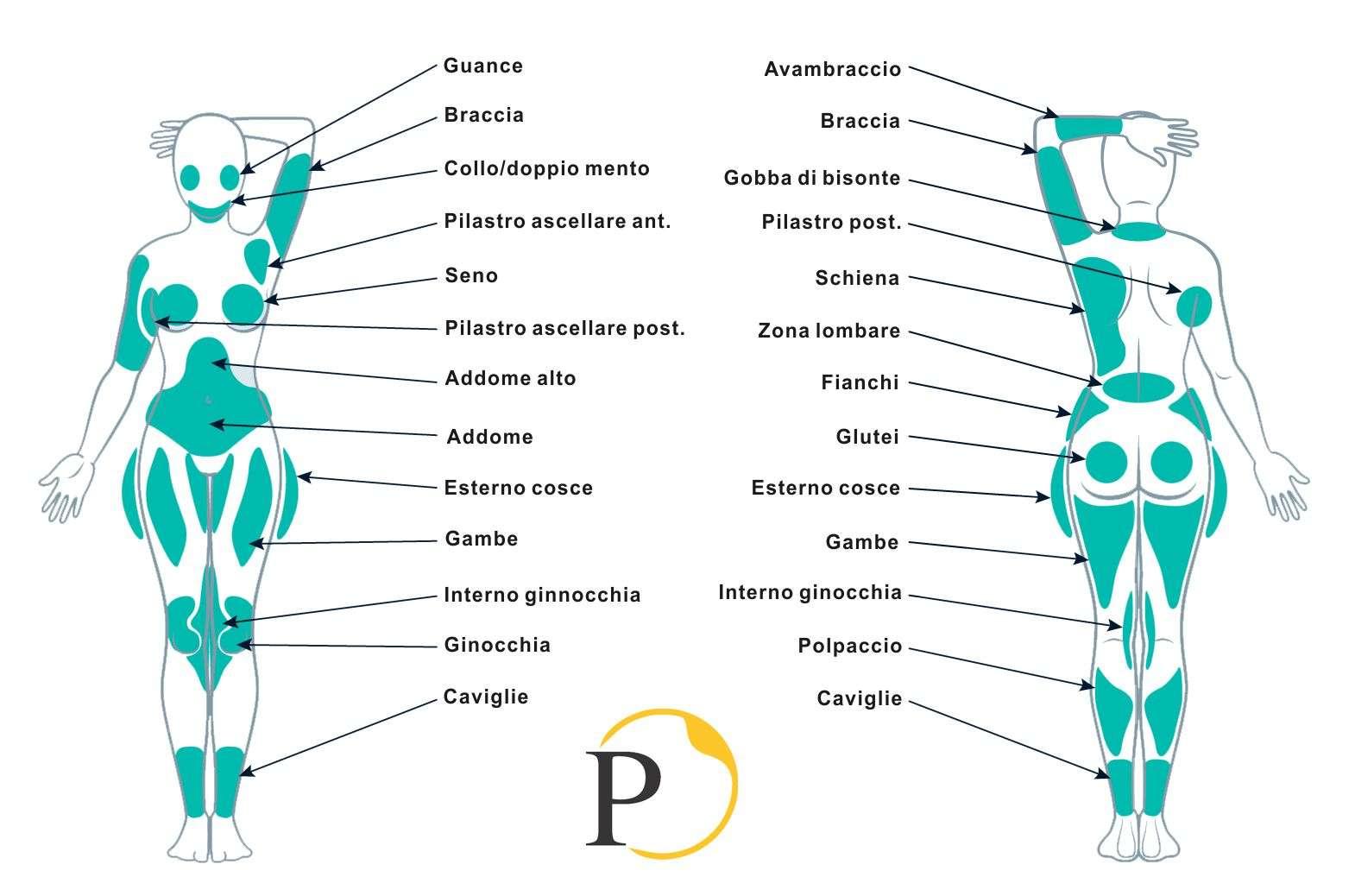 liposuzione area