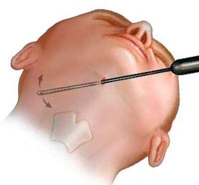 Liposuzione cicatrici determinate dalla lunghezza dell'incisione