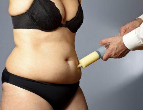 La liposuzione è definitiva: Soluzione definitivamente temporanea