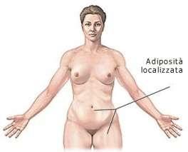 liposuzione adiposità localizzata