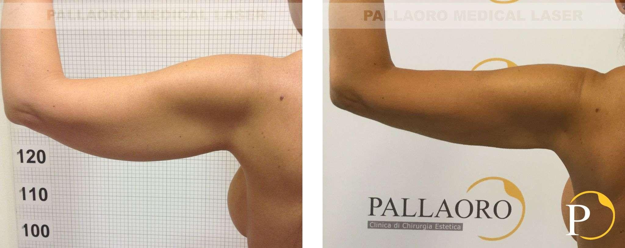 liposuzione foto 2020 0003 01 braccia