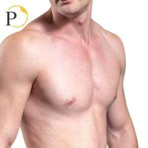liposuzione pettorali