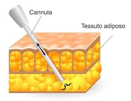 liposuzione tecnica operatoria