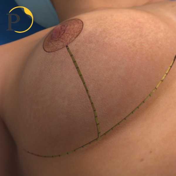 suture dei lembi