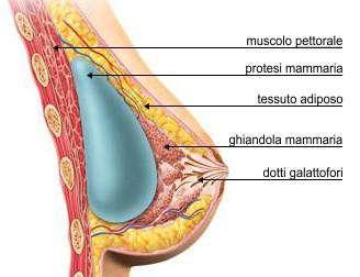 Mastoplastica additiva; Anatomia
