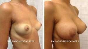 Chirurgia estetica seno: Aumento con protesi seno