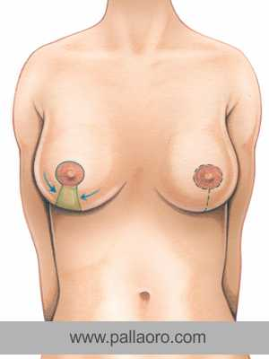 mastoplastica riduttiva cicatrici e intervento