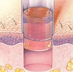Chirurgia estetica acne