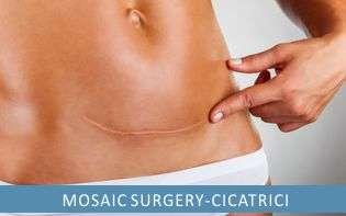 Mosaic surgery - Micro chirurgia estetica delle cicatrici