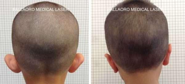Otoplastica foto chirurgia plastica orecchie - Diversi tipi di figa ...