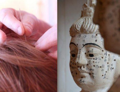 Agopuntura per la calvizie. E' efficace?