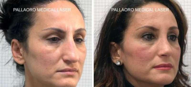 foto prima dopo rinoplastica gibbo nasale