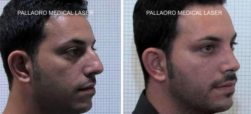 foto rinoplastica uomo naso maschile