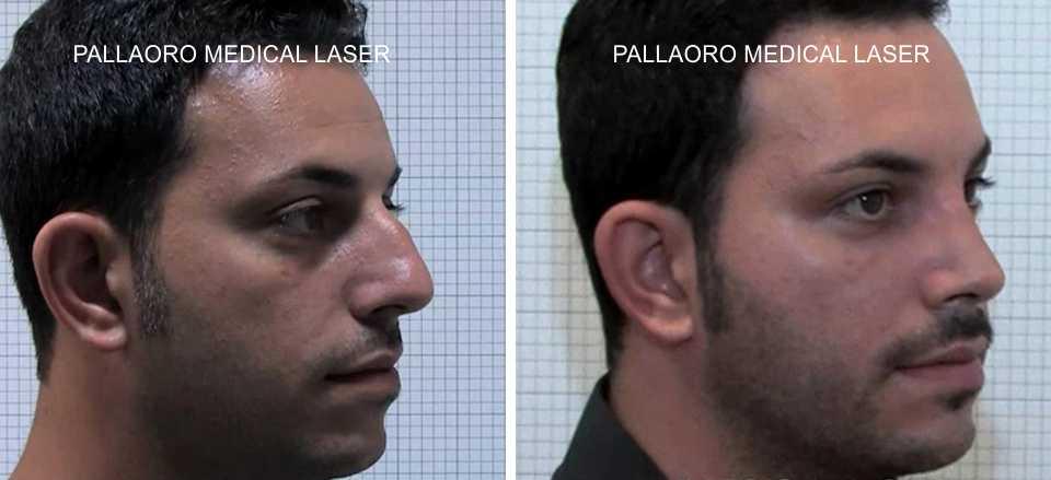 foto rinoplastica naso maschile