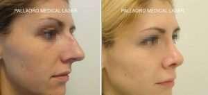 foto rinoplastica naso aquilino e ipertrofico