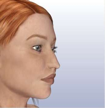 rinoplastica paziente
