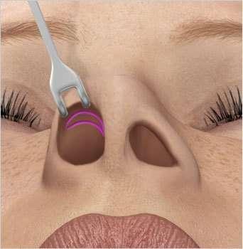 rinoplastica intervento