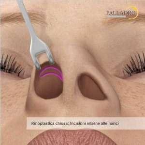 Tecnica chiusa di rinoplastica cicatrici solo all'interno delle narici