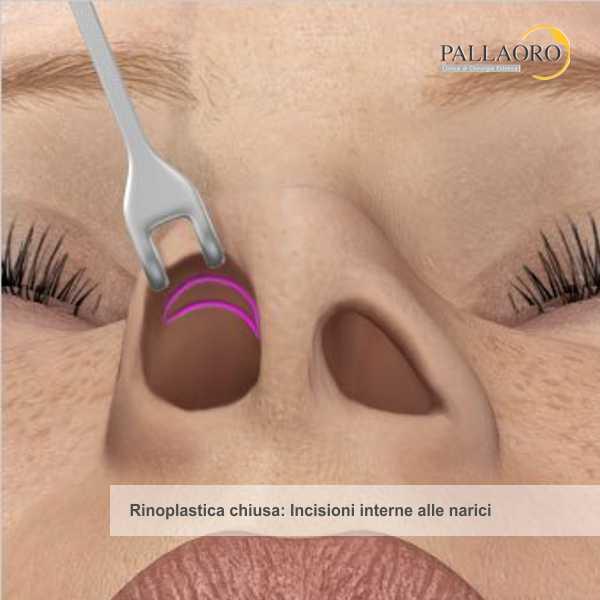 Rinoplastica: Le cicatrici non sono visibili