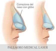 Gibbo al naso rinoplastica chirurgia estetica for Interno naso