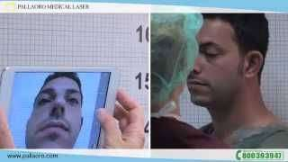 Rinoplastica uomo Video testimonianaza