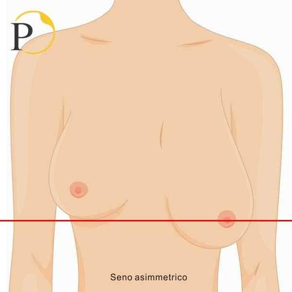 seno asimmetrico
